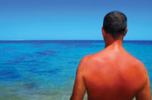 man with sunburn staring at the ocean